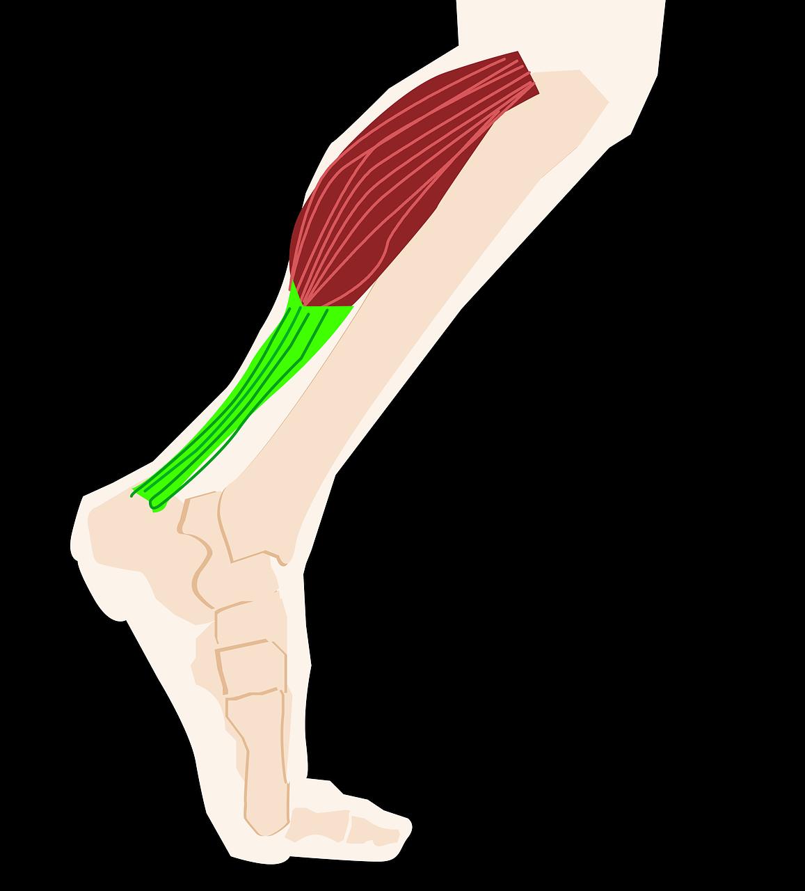 Différence entre tendinite, tendinose et tendinopathie