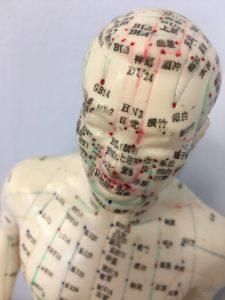erwan motais - osteopathie - osteopathie – osteopathie nice – osteopathe – osteopathe nice - osteo nice – osteo - kine osteo - kine osteo nice – quartier liberation nice – erwan motais - orthese - erwan motais osteo - kinesiotaping - kinesiologie - LPG- Endermologie - CelluM6 - LPG Nice – kine de la main – rééducation – rééducation coude – rééducation poignet – ostéopathie gynécologie – ostéopathie bébé – ostéopathie obstétrique – ostéo sportnice - kine osteo - kine osteo nice - quartier liberation nice - erwan motais - orthese - erwan motais osteo - osteo nice - kinesiotaping - kinesiologie - fascias - plagiocéphalie - auriculotherapie-mukaino-mtest